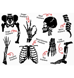 Set Bone Fracture Icon vector