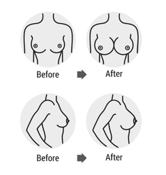breast surgery vector image