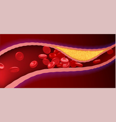 Arteries with clogged fat that causes blood clots vector