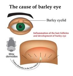 Diseases of the eye barley Causes of barley vector image vector image