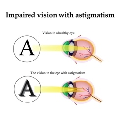Astigmatism as the eye can see with astigmatism vector