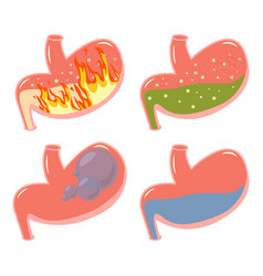pyrosis stomach medical set fire disorder vector image