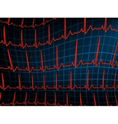ECG tracing monitor EPS 8 vector