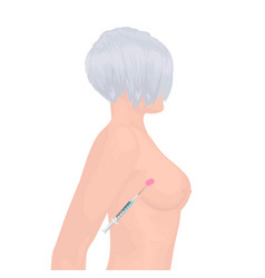 Breast cancer tumor treating vector
