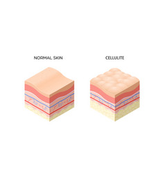 Skin with cellulite and normal skin cross-section vector