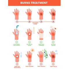 Skin burn burned hand treating protection burns vector