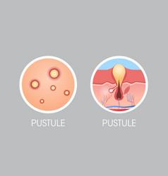 Skin pastule pimples acne type face pore comedones vector