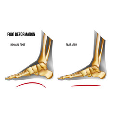 Anatomy flat foot arch medial view vector