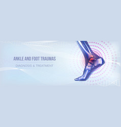 Horizontal ankle and foot traumas banner for vector