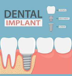 Infographics of human teeth and dental implant vector