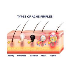 skin acne anatomy composition vector image