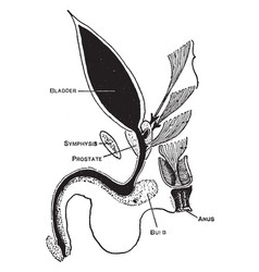 Imperforate anus vintage vector