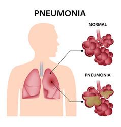 Pneumonia concept background realistic style vector