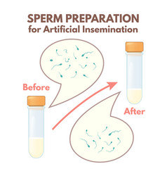 preparation of sperm vector image