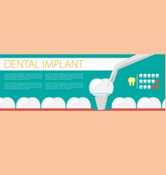 Dental implant flat vector