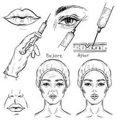 Sketch of botox injection cosmetic procedure set vector