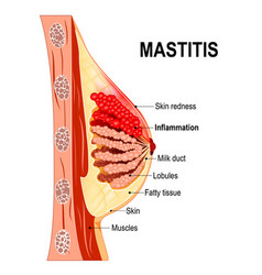 Mastitis cross-section of the mammary gland with vector