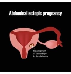 Development of the embryo in the abdomen Ectopic vector