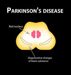 Parkinsons disease degenerative changes vector