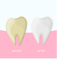Professional teeth whitening healthy and yellow vector