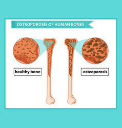 Scientific medical osteoporosis bones vector