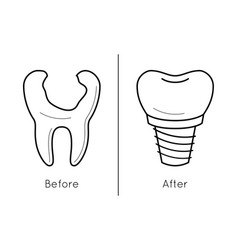 Icons of tooth dental implant vector