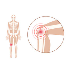 Pain in knee joint vector