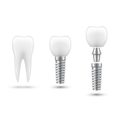 dental implant healing abutment or cap crown vector image