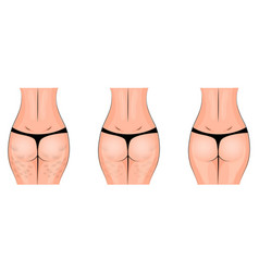 Cellulite cellulitis buttocks vector