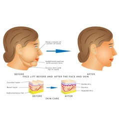 Ageing face changes vector image vector image