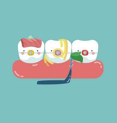 food stuck teeth teeth and tooth concept of denta vector image