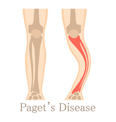 paget disease icon cartoon style vector image