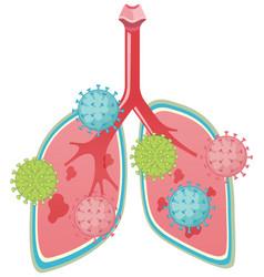 Lungs attacked coronavirus cartoon style vector