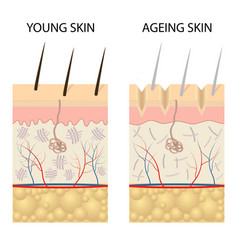 Young healthy skin and older skin comparison vector