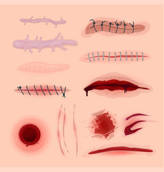 Skin scars cuts and bloody wounds set vector