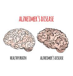 Alzheimer disease memory loss medicine vector