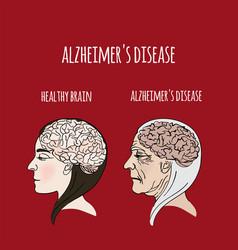 alzheimer disease dementia medicine vector image