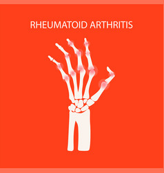 Arthritis hand rheumatoid medicine education vector