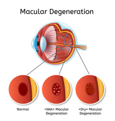 macular degeneration medical scheme vector image