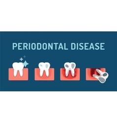 Periodontal disease stage steps vector