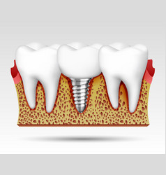 3d teeth in a cut with nerve endings vector