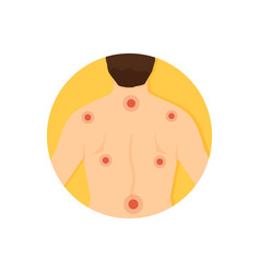 fibromyalgia disease man with pain in his back vector image