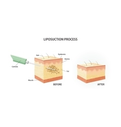 Liposuction process vector image