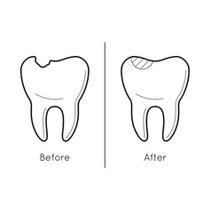 Tooth before and after caries vector