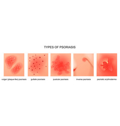 types psoriasis vector image