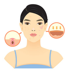 Pimple vector