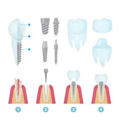 Dental crowns and implantation vector