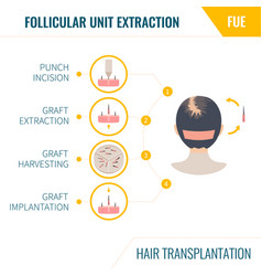 Hair transplantation fue method in women vector