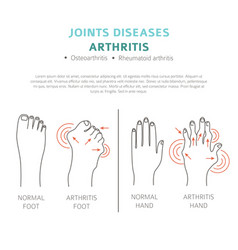 Joints diseases arthritis symptoms treatment icon vector