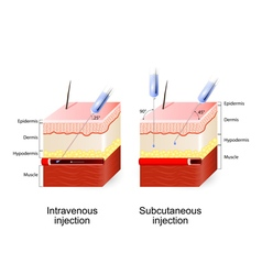 Intravenous therapy and Subcutaneous injection vector image vector image